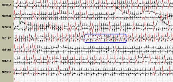Выявление нарушений сердечного ритма при помощи холтеровского мониторирования ЭКГ: всегда ли исследование информативно?